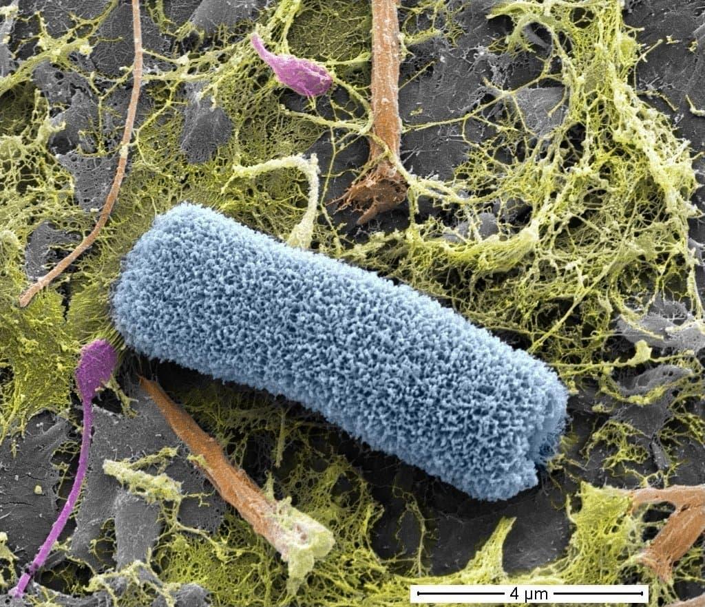 Eine farbige Rasterelektronenmikroskop-Aufnahme, die eine stabförmige und fransige Mikroorganismen zeigt.