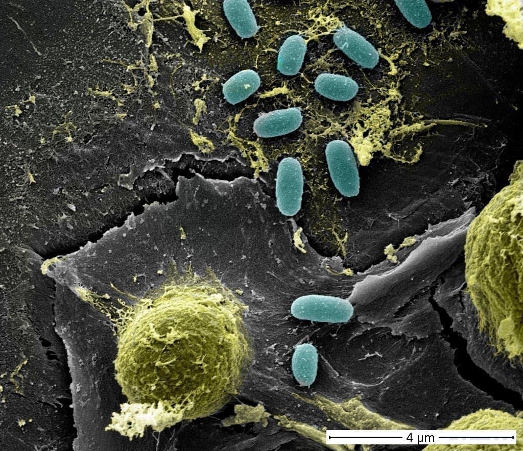 Eine farbige Rasterelektronenmikroskop-Aufnahme, die mehrere reiskornförmige und runde Mikroorganismen zeigt.