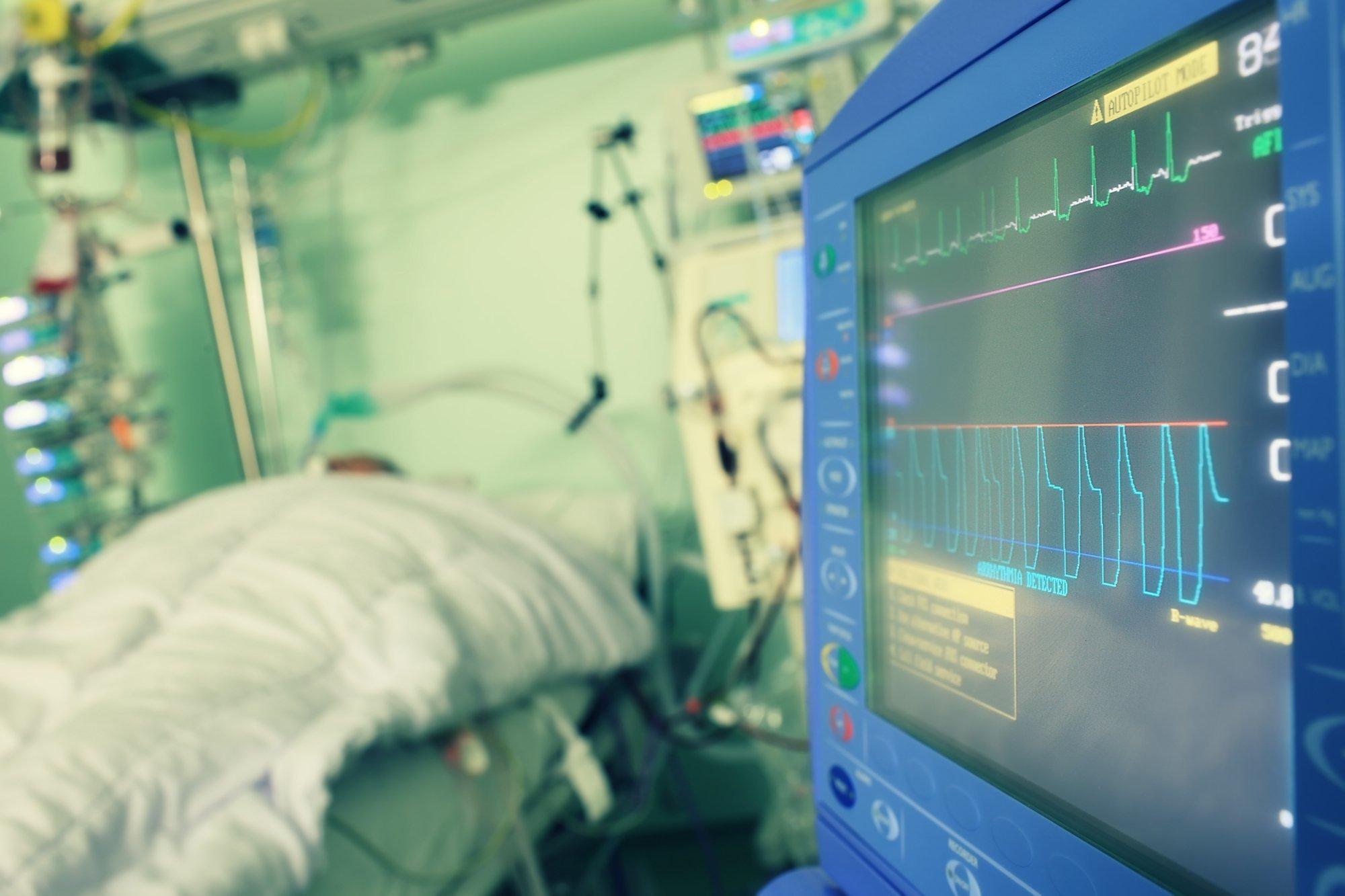 Das Symbolfoto stellt einen Patienten auf der Intensivstation eines Krankenhauses dar. Ein Monitor stellt Informationen über seinen Gesundheitszustand dar.