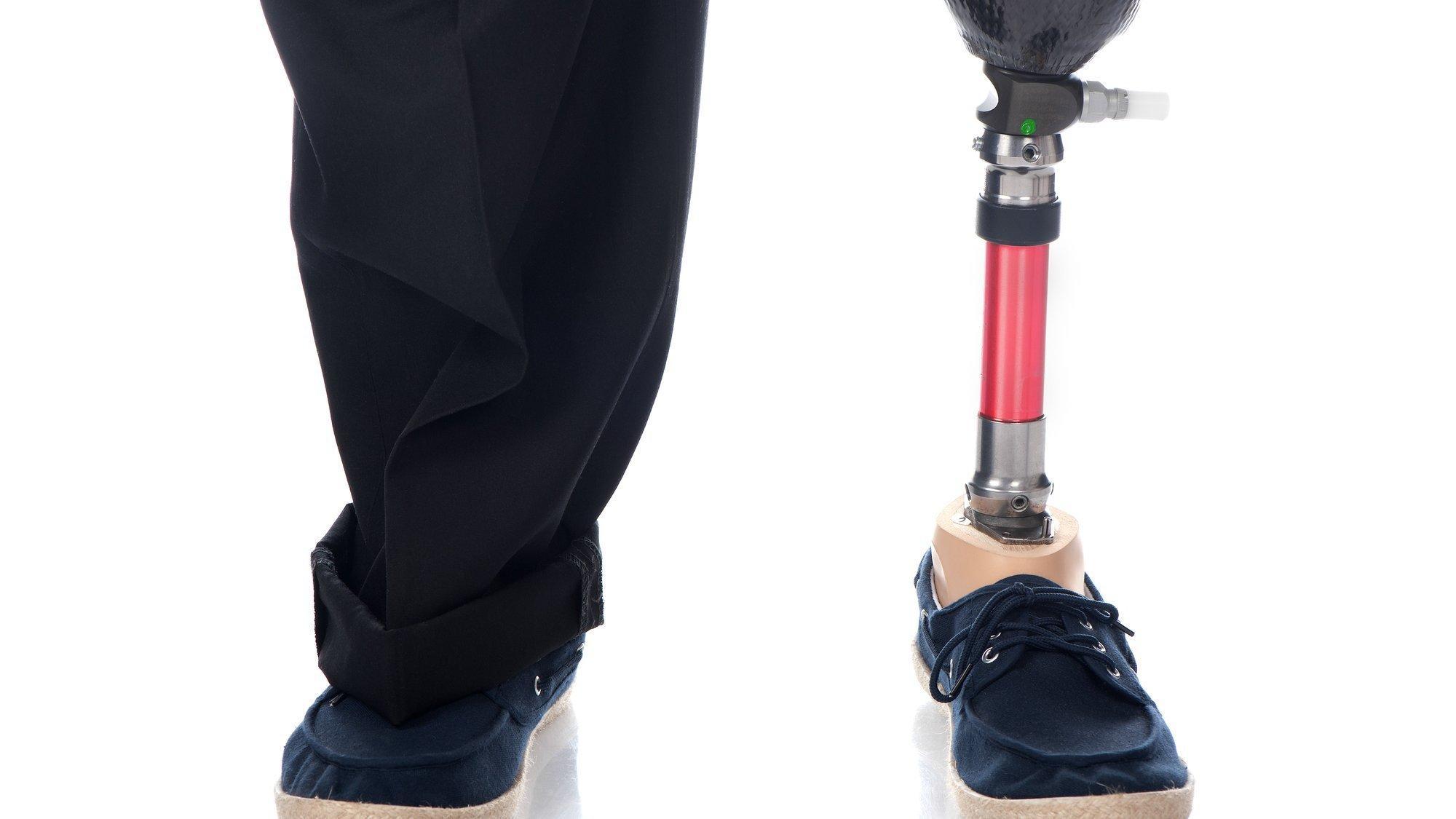 Zwei Beine eines erwachsenen Mannes, der links eine Unterschenkelprothese hat und rechts sein gesundes Bein. Beide Füße stecken im Schuhen.