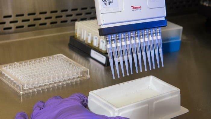 Mit Hilfe einer Pipette wird in einem Labor unter sterilen Bedingungen ein Test auf Antikörper gegen das neue Coronavirus durchgeführt. Zu sehen eine Multipette, mit der kleine Mengen eines Testreagenz in die Probengefäße gegeben werden können.