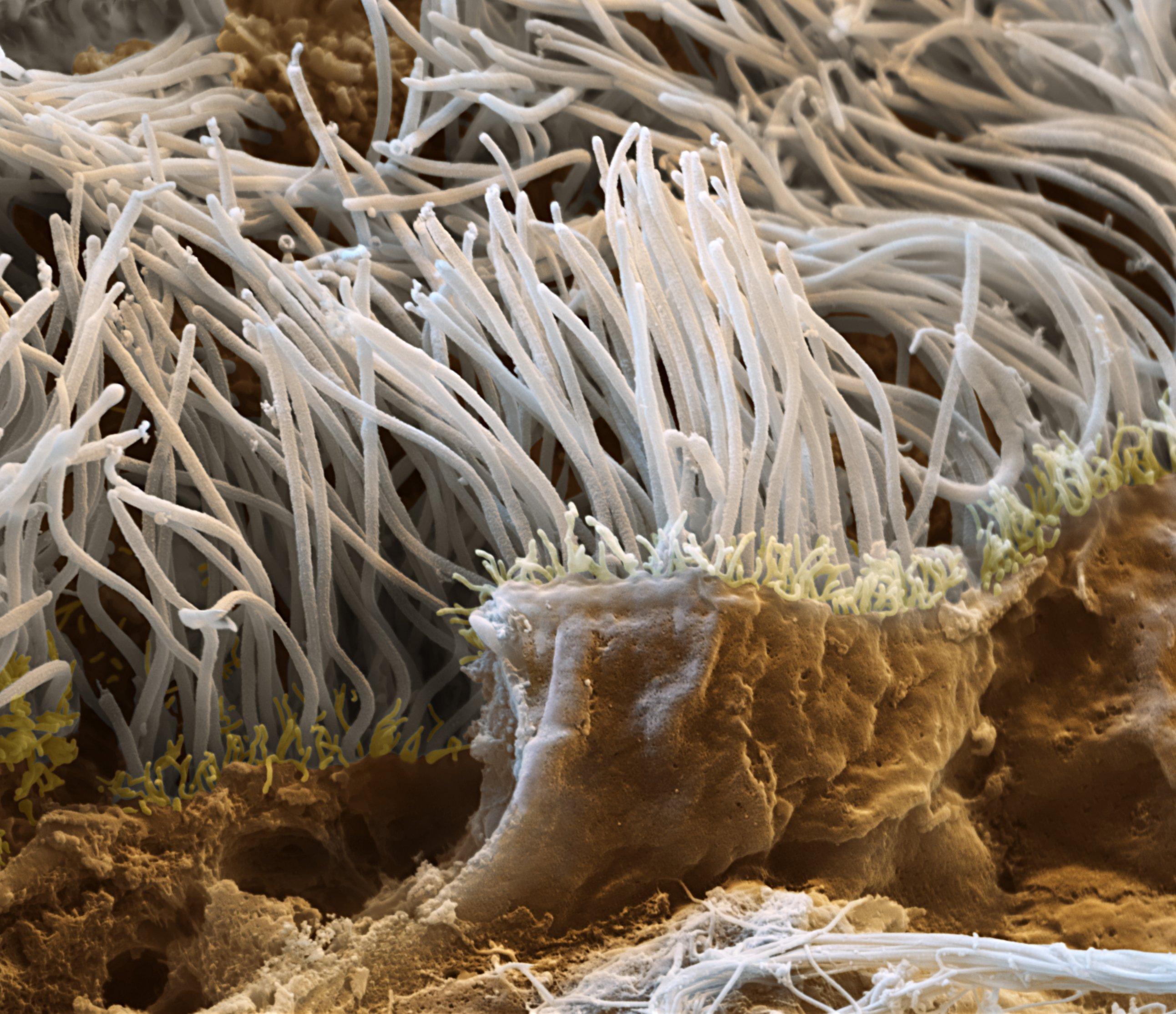Das Bild zeigt einen Bruch durch das Gewebe der Flimmerepithelien der Lunge (Tunica mucosa). Diese Flimmerepithelien kleiden die gesamten Bronchien der Lunge aus. Die Cilien dieser Zellen schlagen ständig in Richtung der Luftröhre und transportieren eingeatmete Schmutzpartikel, zusammen mit abgesondertem Schleim, aus der Lunge heraus. (Probe: Schwein) Raster-Elektronenmikroskop, Vergrösserung   12000:1  (bei 15×13cm Bildgrösse)