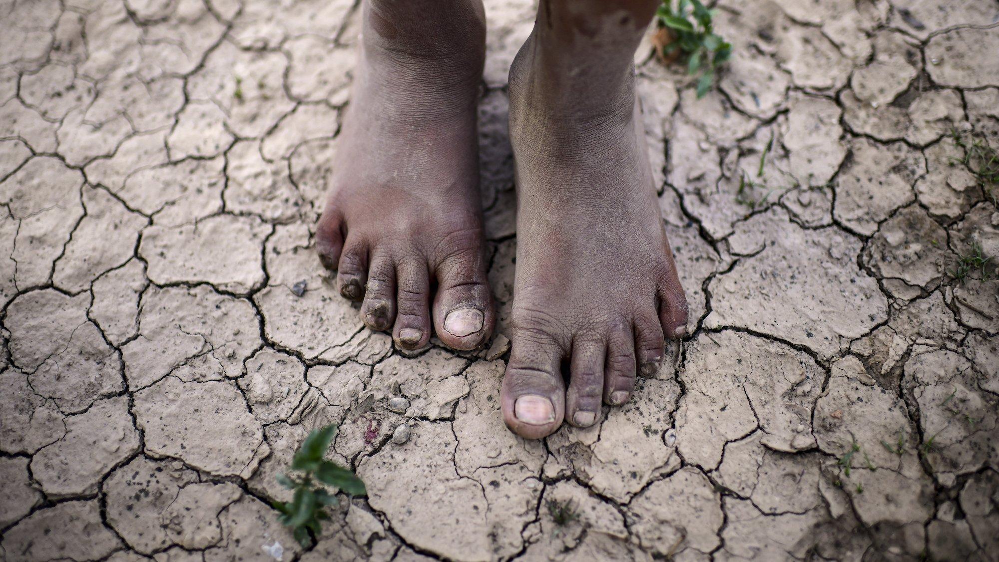 Das Bild zeigt die Füße eines Mädchens auf aufgerissenem, ausgetrockneten Boden. Das Bild stammt aus Argentinien.