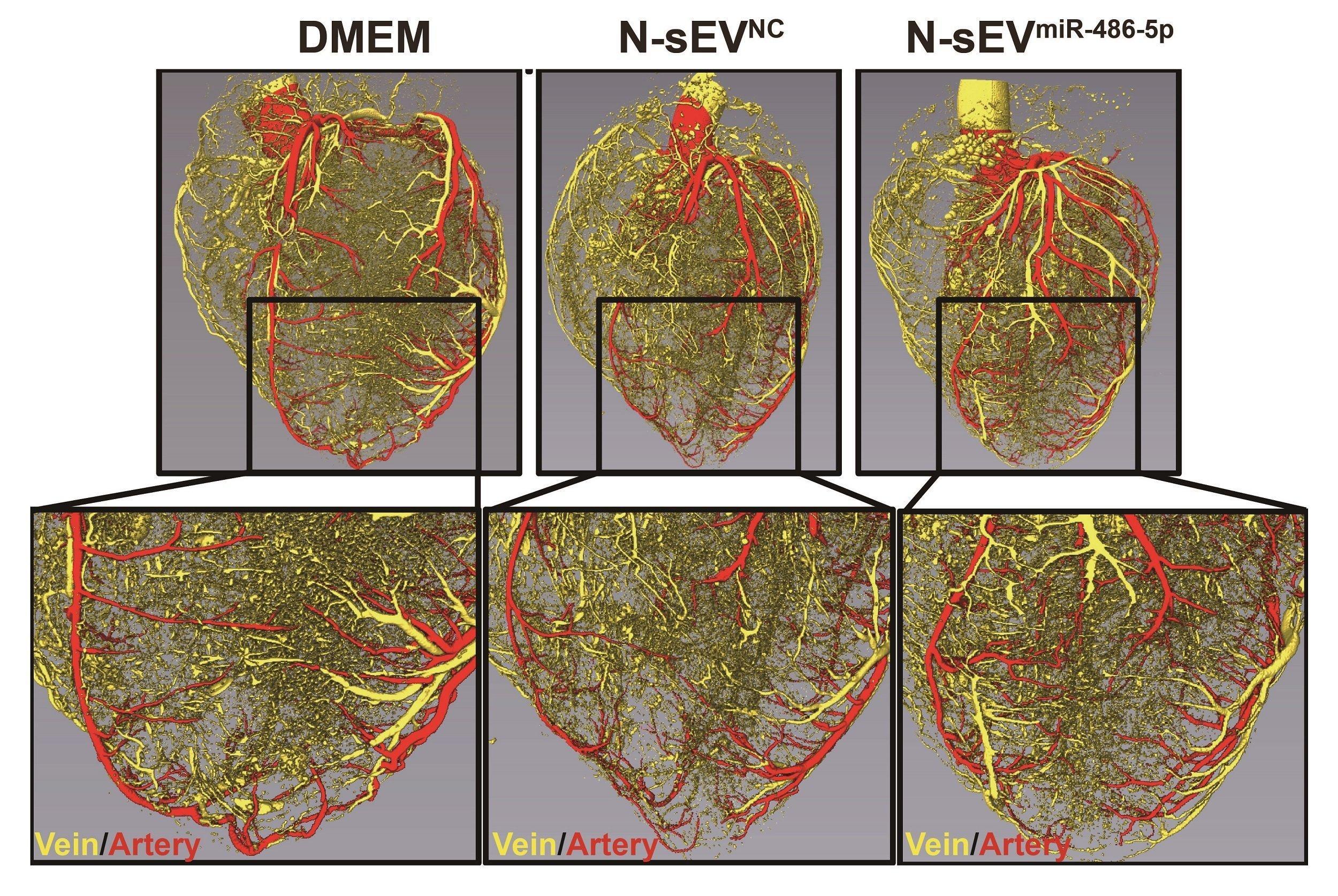 Aufnahmen der Herzkranzgefäße dreier Herzen. Das linke Herz hat mehr feine Blutgefäße als das mittlere und das rechte.