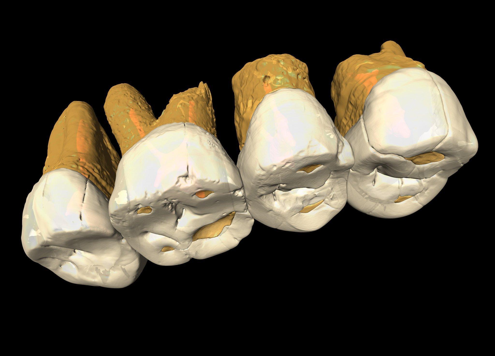 Auf dem Bild ist ein CT-Scan der Zähne von Homo luzonensis zu sehen. An der anatomischen Beschaffenheit der Zähne erkennen Paläoanthropologen eine Kombination von Merkmalen, wie sie bei keiner anderen Menschenart vorkommt