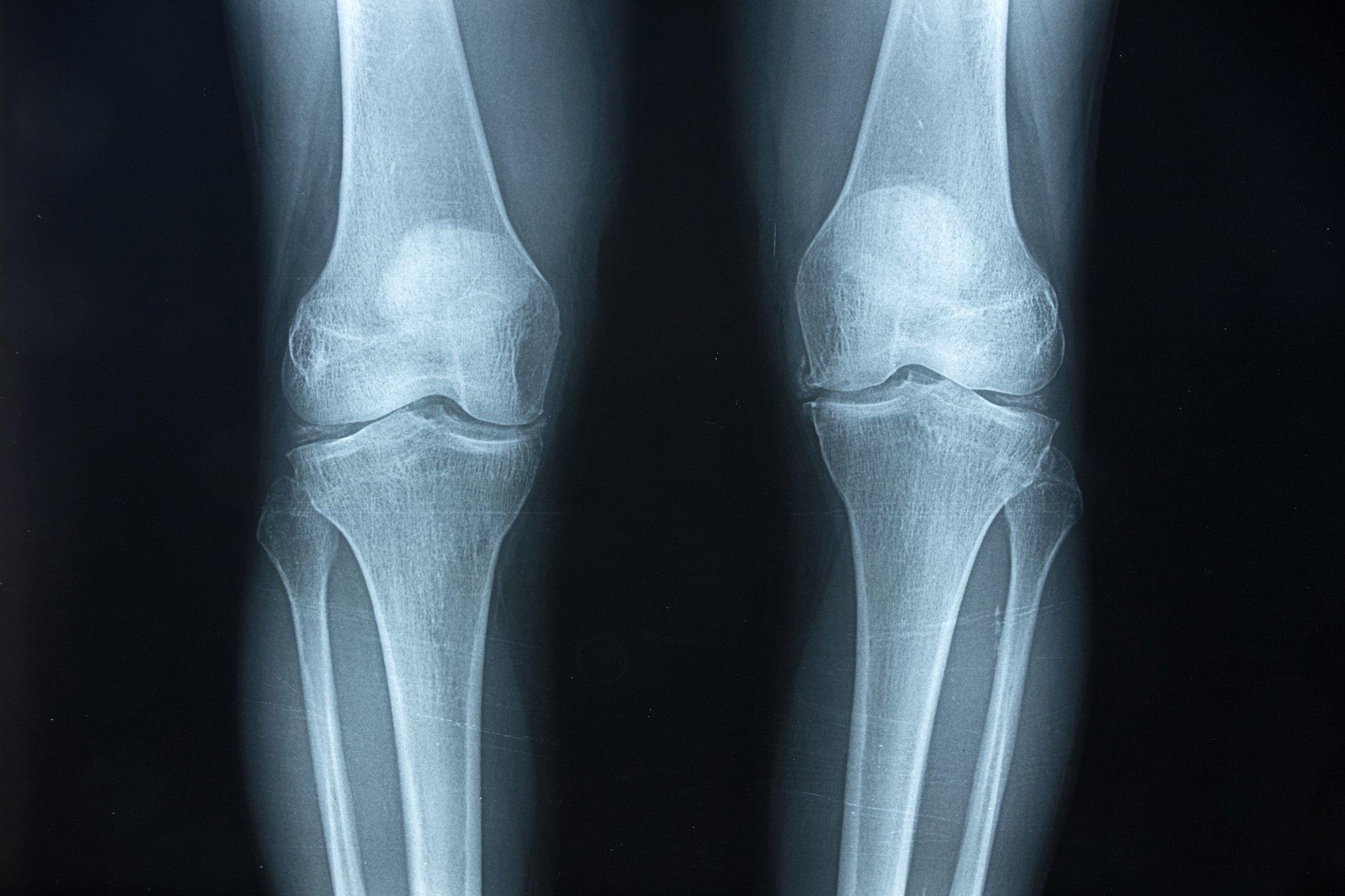 Das schwarzweiße Röntgenbild zeigt die beiden massiven Kniegelenke eines heutigen Menschen und jeweils ein Stück der Oberschenkelknochen sowie der Unterschenkel. Die Knochen im Gelenk stehen etwas schräg aufeinander, weil das Becken beim aufrecht gehenden Menschen breiter ist als bei Affen. So lässt sich auch an fossilen Knochen erkennen, ob sich ein Lebewesen einst zweibeinig fortbewegt hat.