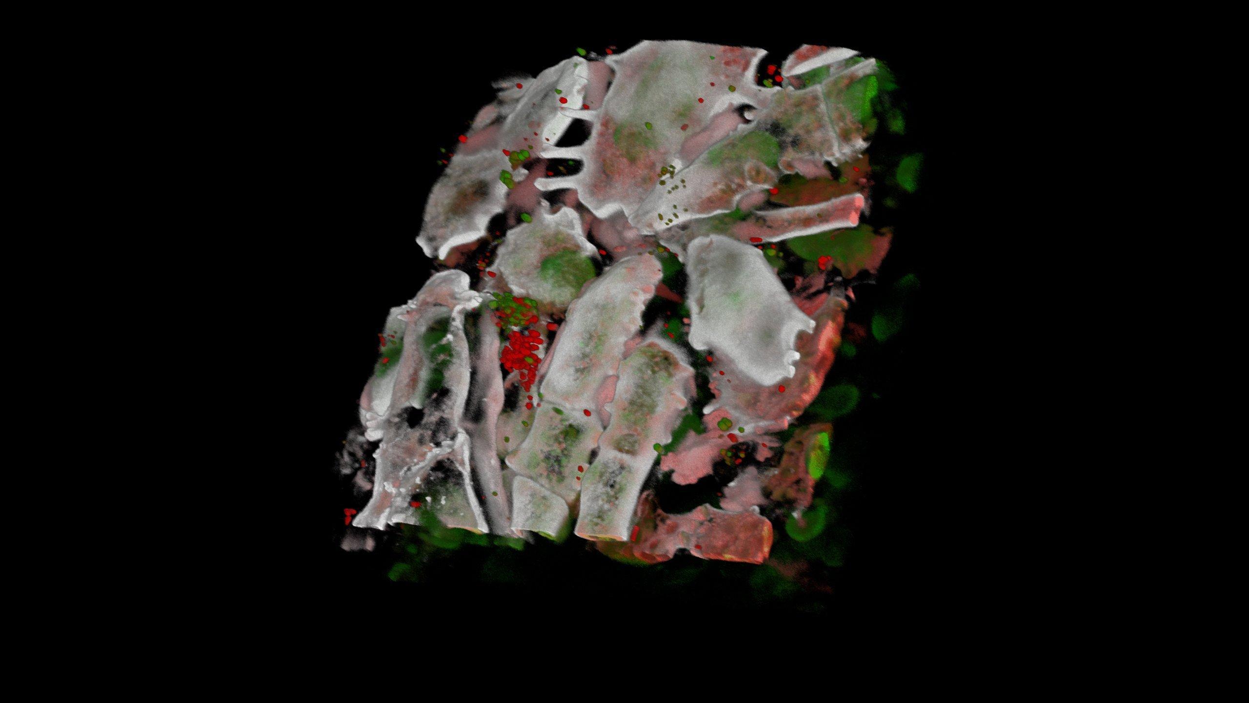 Im Bild ist eine Mikroskopaufnahme einer Apfelschale zu sehen. Man sieht die Mikroorganismen der Schale.