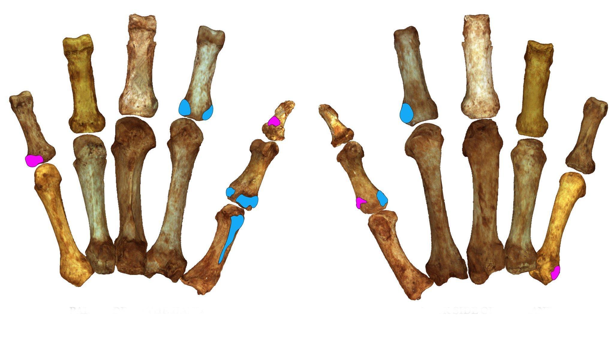 Das Bild zeigt die Handknochen eines Neandertalers. Daran sind jene Stellen farbig markiert, an denen Muskeln ansetzen, mit welchen die Urmenschen Kraft- und Präzisionsgriffe ausübten. Forscher konnten so nachweisen, dass Neandertaler ebenso feinfühlig greifen können wie moderne Menschen.