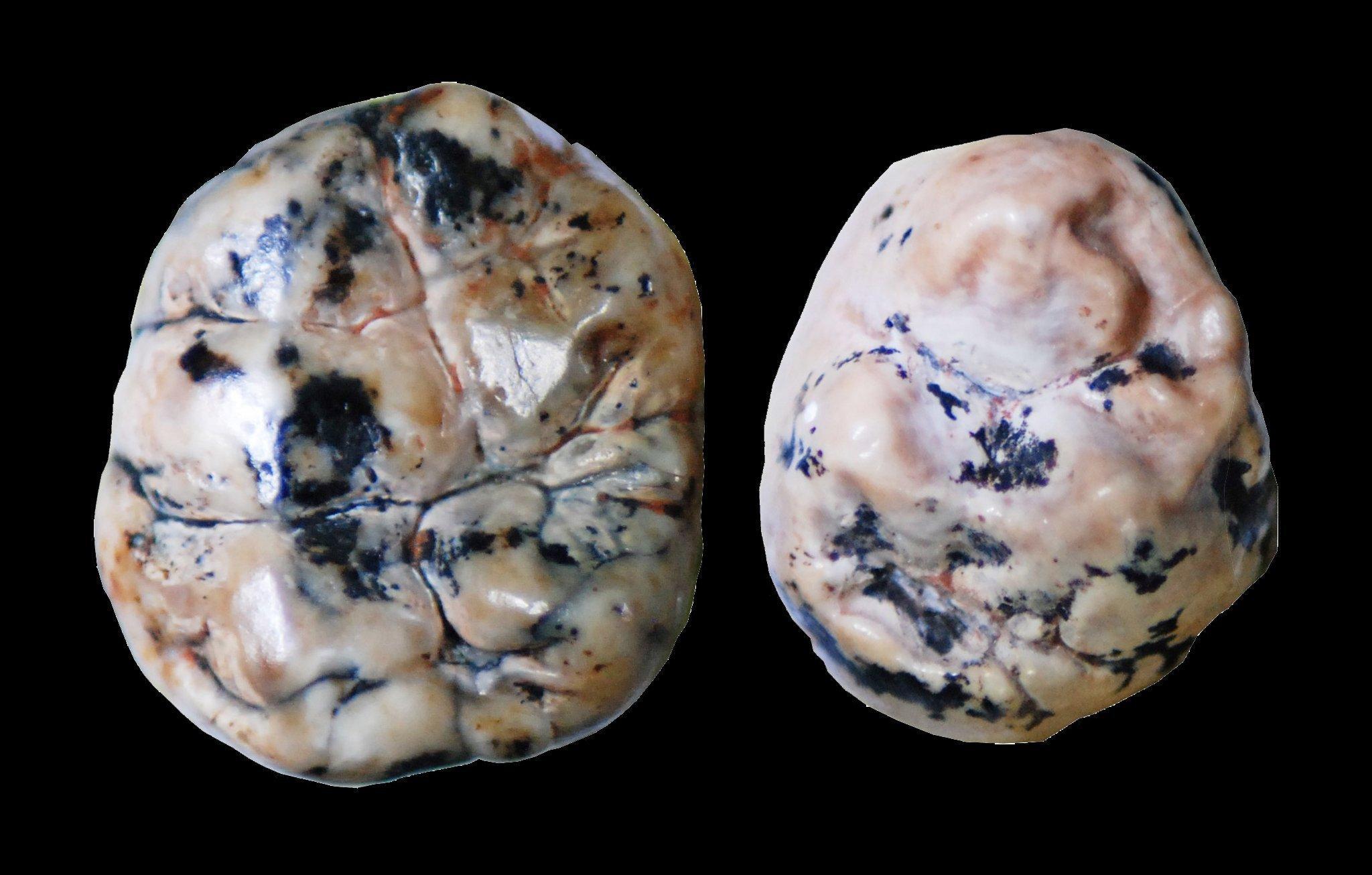 Das Foto zeigt links den fossilen Zahn eines Australopithecus africanus von oben und rechts den etwas kleineren Zahn eines frühen Homo. Paläoanthropologen können die Zähne anhand ihrer unterschiedlichen Morphologie – etwa die Form der Hügel und Furchen auf der Zahnkrone – zuordnen. Doch nicht nur das: Forscher um den Franzosen Vincent Balter von der Universität Lyon analysierten auch das Verhältnis von Variationen (Isotopen) des Elementes Kalzium in den Zähnen und konnten nachweisen, dass sich die Arten in ihrem Stillverhalten unterscheiden.