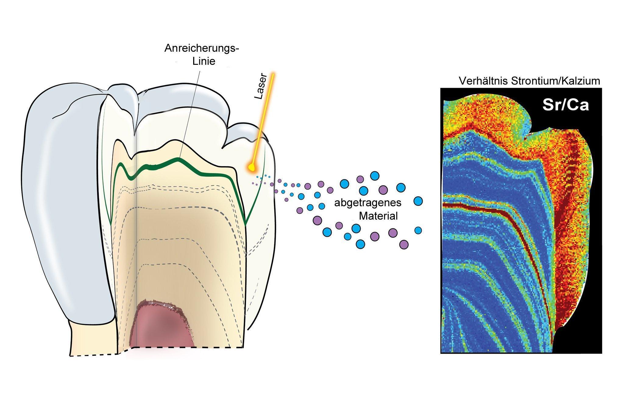 Die Illustration zeigt links einen aufgeschnittenen Zahn, dessen Inneres einen schichtweisen Aufbau erkennen lässt. Während der Zahn im Kiefer eines Kindes wächst, werden solche Schichten abgelagert – und je nach Ernährung reichern sich bestimmte Spurenelemente an. Zudem ist ein eingezeichneter Laserstrahl zu sehen, der vom Zahn winzige Mengen an Materials herauslöst, das die Forscher analysieren. Ganz rechts ist das Schnittbild eines Zahns zu erkennen, in dem das Verhältnis des Spurenelements Strontium zum Hauptelement Kalzium farbig dargestellt. Aus diesem Verhältnis können Forscher schließen, zu welchem Zeitpunkt während der Zahnentstehung ein Kind Muttermilch erhalten hat.